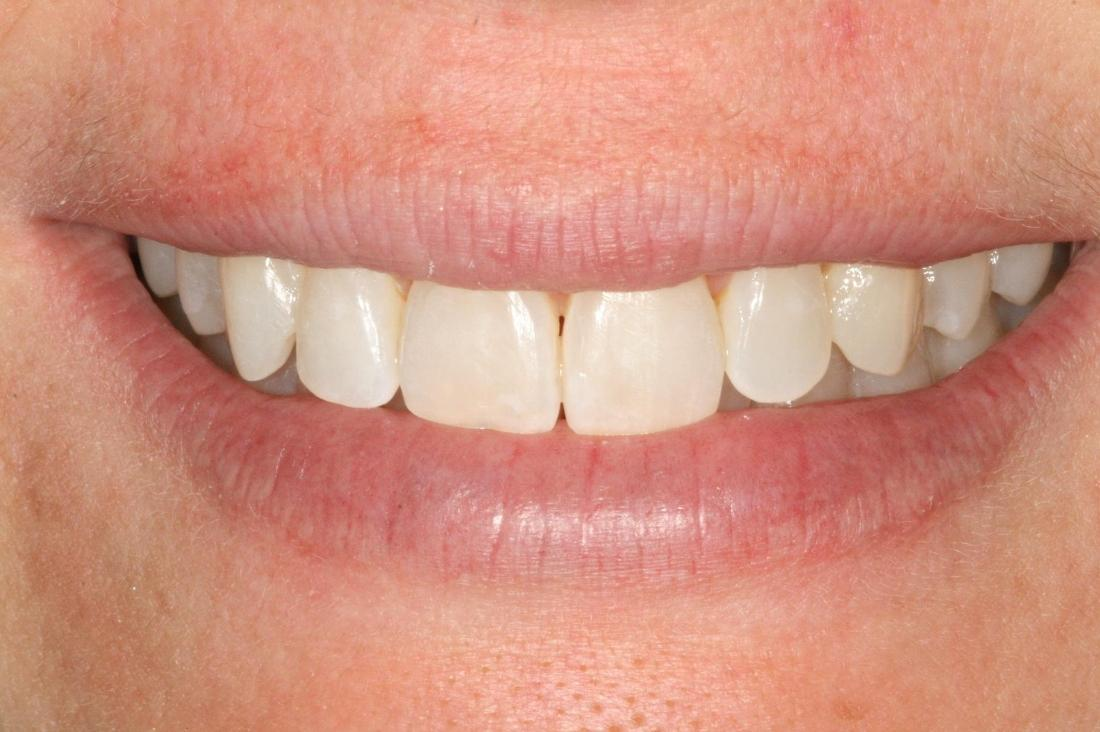invisalign straightened this patient's misaligned front teeth