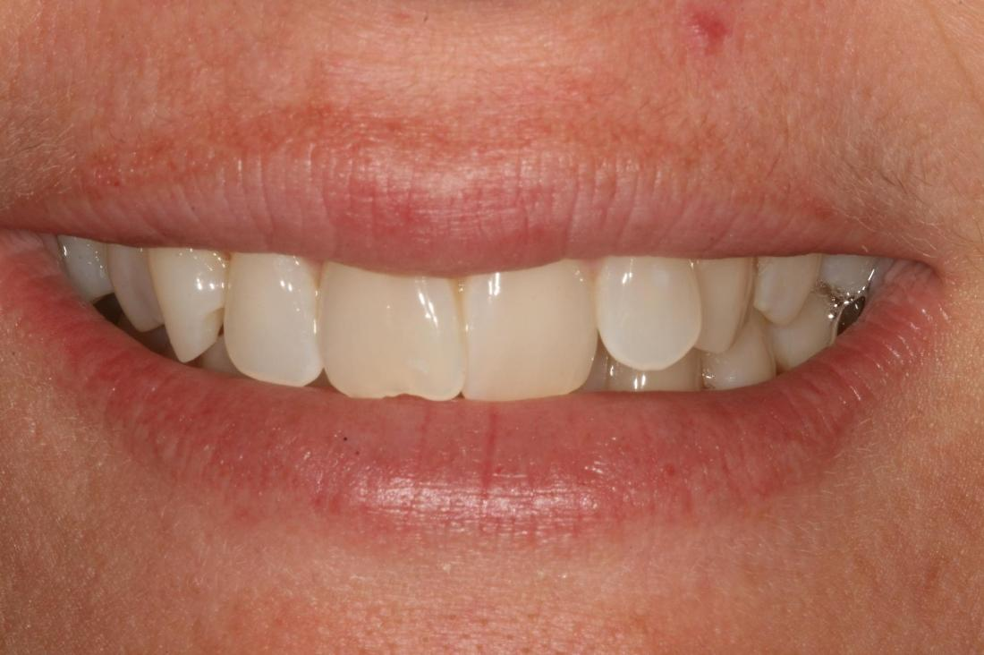 misaligned front teeth