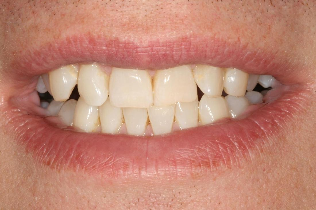 patient's smile with crooked teeth
