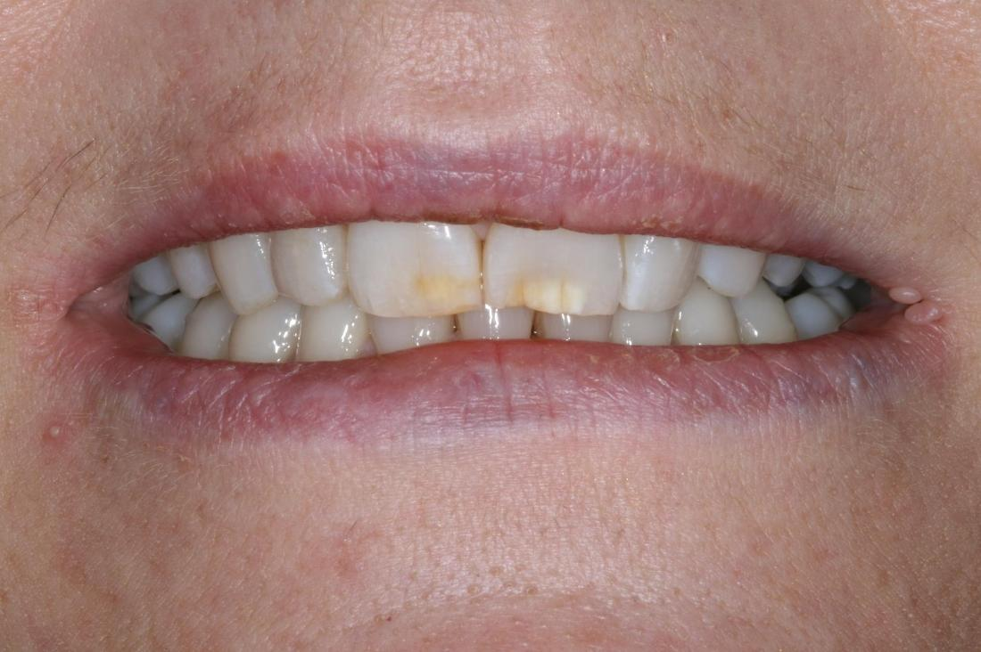 discolored parts of front teeth
